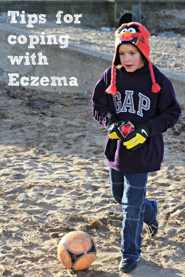 Coping with Eczema